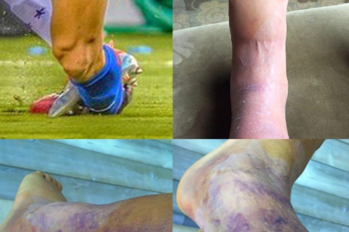 Cuatro días después del encuentro, este jueves, Alexis Sánchez subió una nueva instantánea con la evolución de su lesión. Foto:Getty Images. Imagen Por: