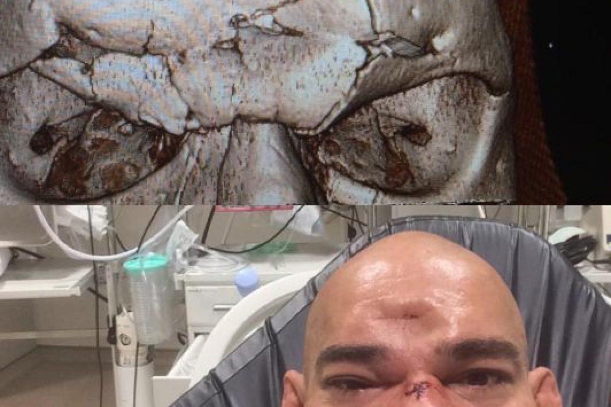 El golpe le causó una fractura en el cráneo Foto:Vía instagram.com/criscyborg. Imagen Por: