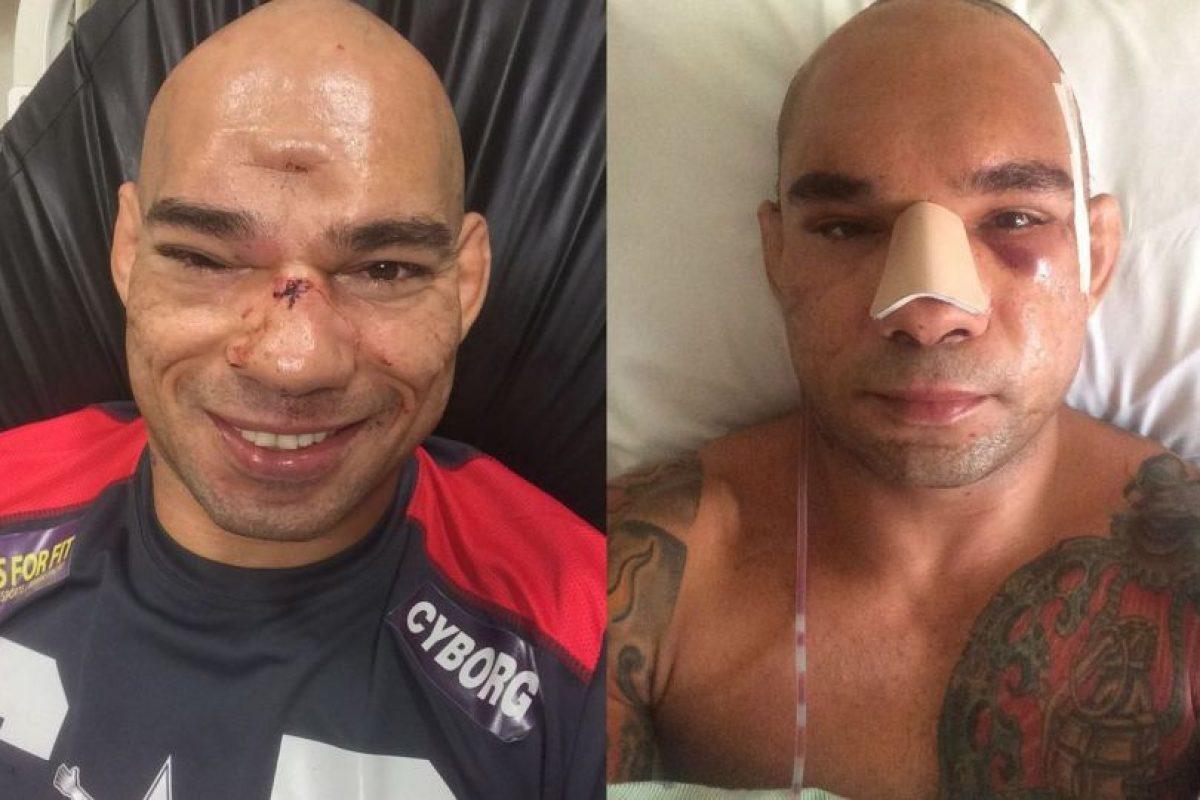 Foto:MMA Fighting. Imagen Por: