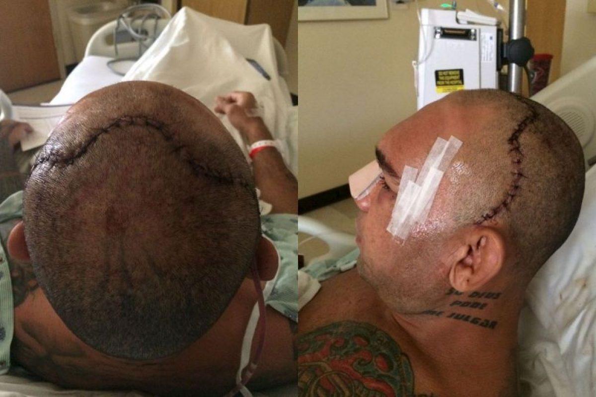"""Imágenes de la operación de """"Cyborg"""" Foto:MMA Fighting. Imagen Por:"""