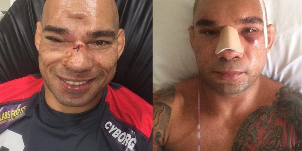 Impactante: Las fotos de la operación por fractura de cráneo de un luchador de MMA
