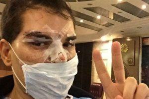 Así quedó Alves cuando casi se le pudre la cara. Cerró su Instagram hasta no recuperarse. Foto:Instagram. Imagen Por: