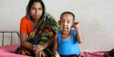 Una extraña enfermedad hace que un niño bangladesí parezca un anciano