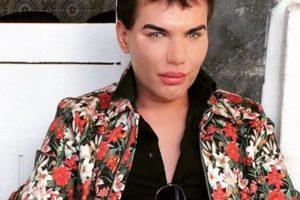 Acá, antes de transformar su nariz. Foto:Instagram/rodrigoalvesiuk. Imagen Por: