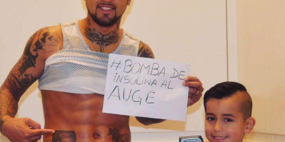 Arturo Vidal le pide a Bachelet que la bomba de insulina entre al Auge con un especial tatuaje