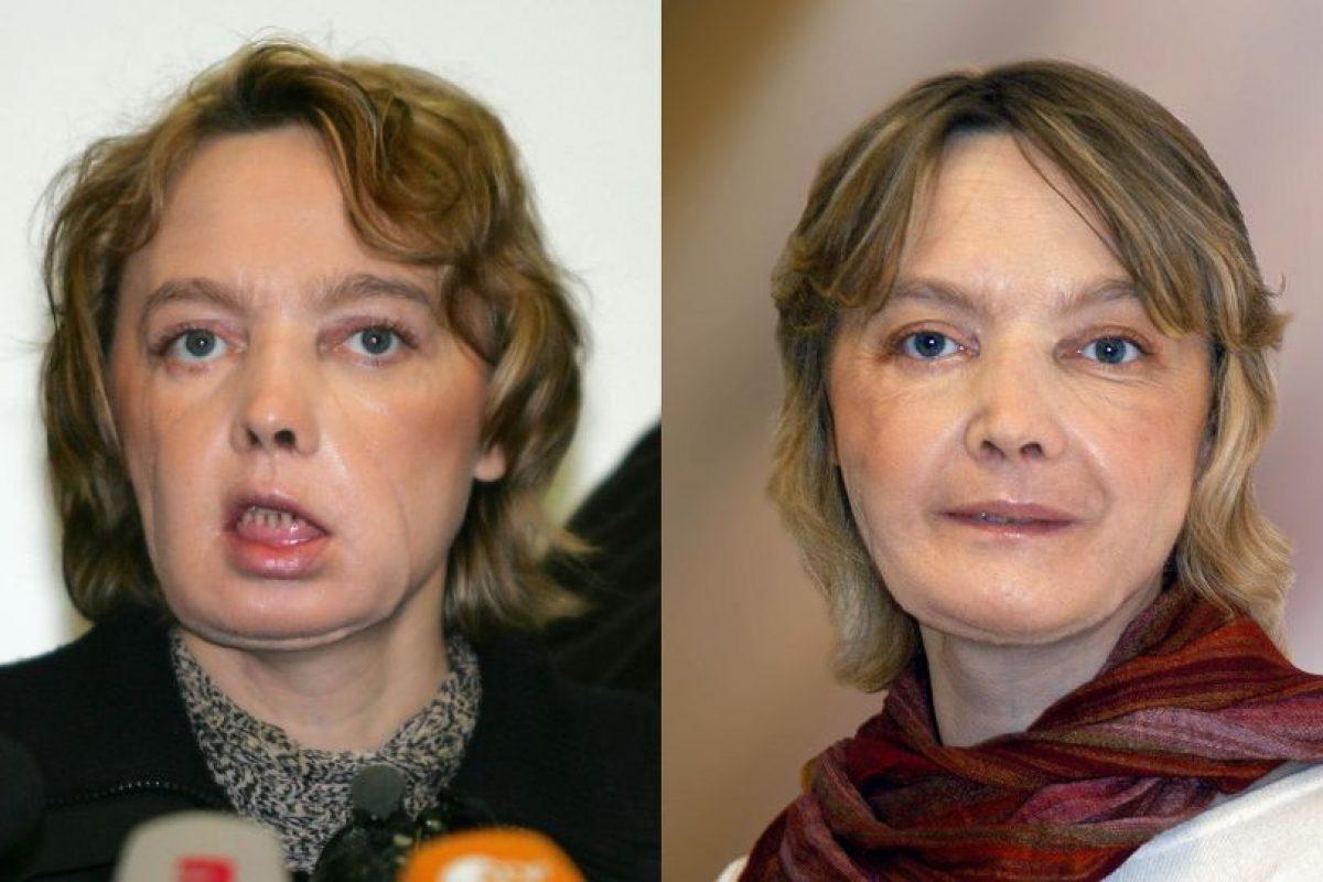 Isabelle Dinoire había perdido los labios, parte de la nariz y la barbilla al ser atacada por su perra en mayo de 2005. Foto:Afp. Imagen Por: