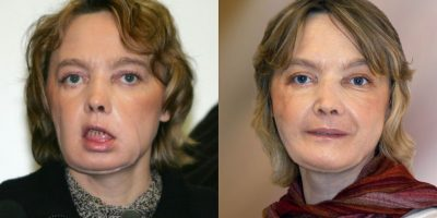 Muere la mujer francesa que recibió el primer trasplante de cara