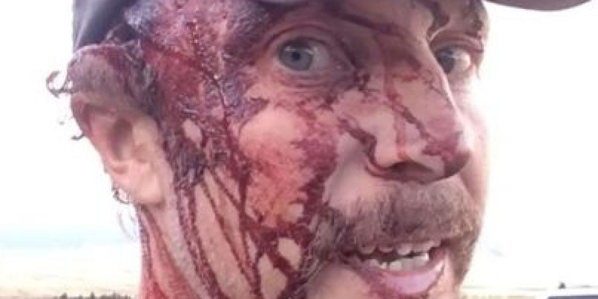 Quedó peor que DiCaprio: las fuertes imágenes de las heridas que sufrió hombre que fue atacado dos veces por una osa