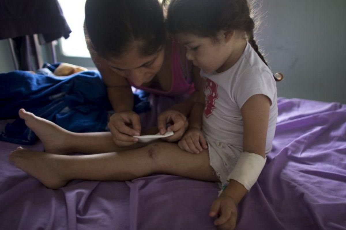 Pues una herida en la rodilla se complicó por la falta de medicamentos Foto:AP. Imagen Por: