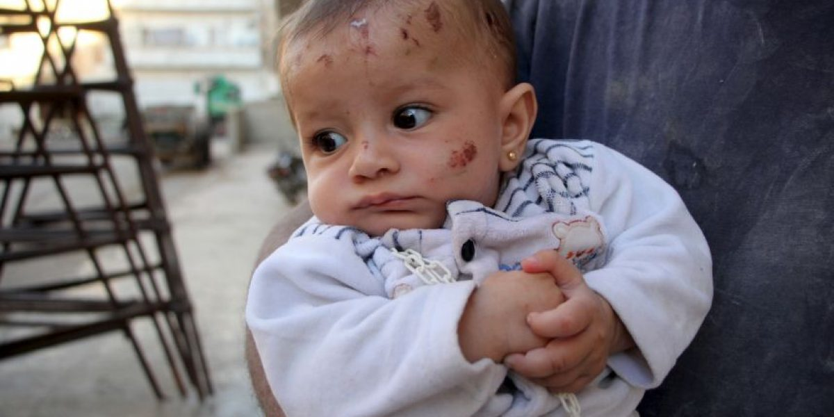 Siria: Niña de 4 años muere al confundir una bomba con un juguete