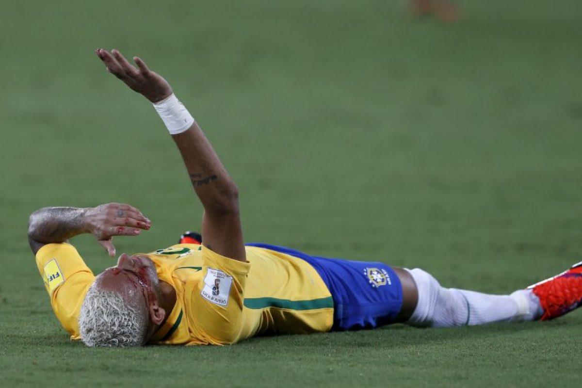 Neymar salió ensangrentado en el último partido eliminatorio Foto:AP. Imagen Por: