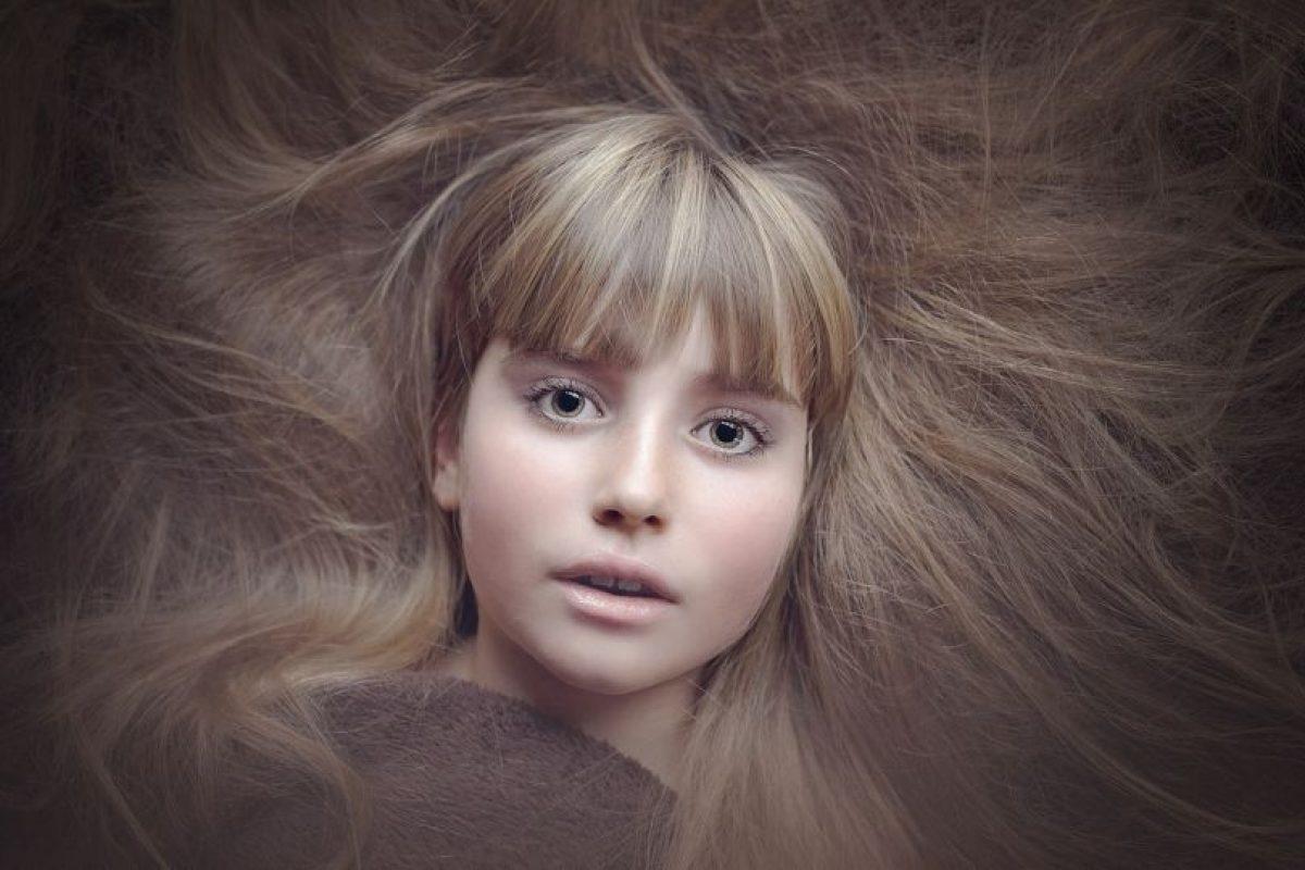 Sobre las personas que padecen tricotilomanía, los especialistas sugieren que está relacionada con la depresión. Foto:Pixabay. Imagen Por:
