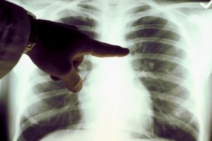 Consejos para prevenir el cáncer Foto:Getty Images. Imagen Por: