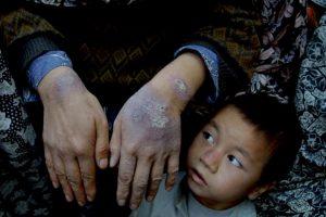 Más de mil mujeres por año son víctimas de asesinatos «por honor» según la Pakistan's Human Rights Commission. Foto:Getty Images. Imagen Por: