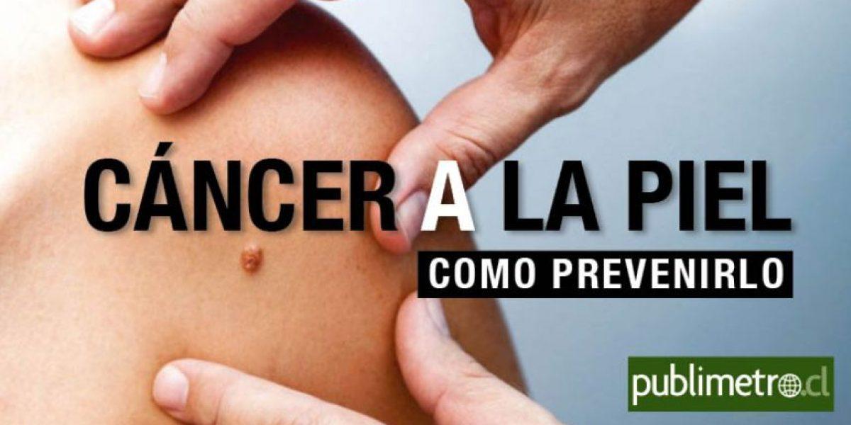 Infografía: cáncer a la piel