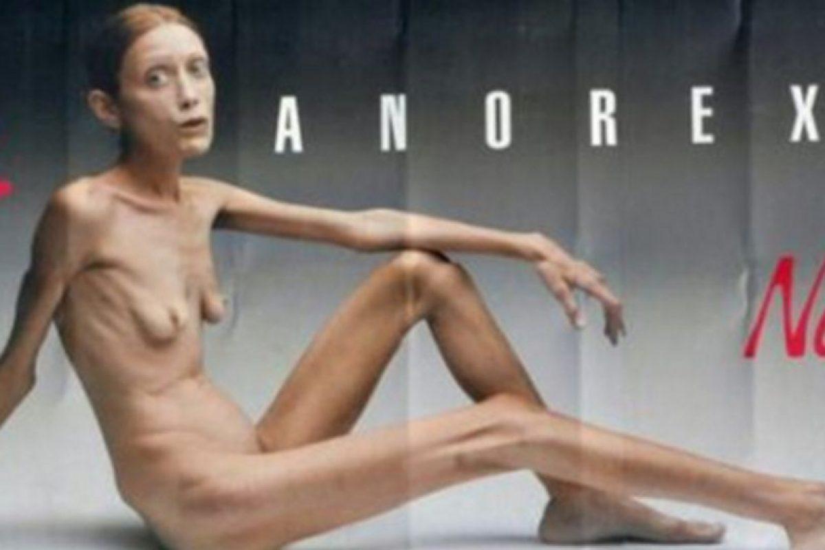 Isabelle Caro protagonizó esta campaña en 2007. Pero eso no impidió que se muriera en 2010 de neumonía. Foto:Getty Images. Imagen Por: