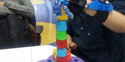 Prótesis hechas en impresoras 3D: nueva tecnología llega a Teletón