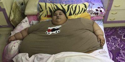 El nuevo récord de la mujer más gorda del mundo: pierde 250 kilos tras operación en India