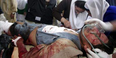 Un hombre recibiendo asistencia en un hospital de Peshawar (Pakistán) tras resultar herido en un atentado hoy. EFE