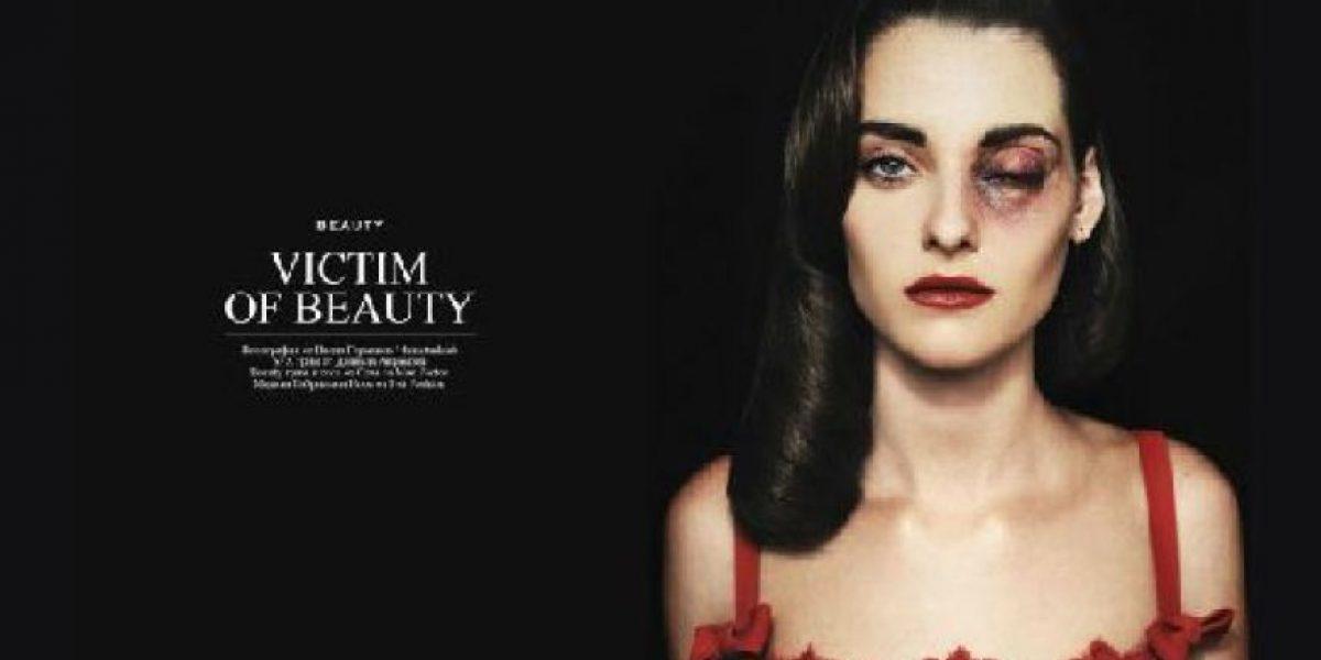 Fotos de bellas modelos con rostro desfigurado desataron polémica