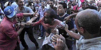 Un hombre egipcio ensangrentado tras los enfrentamientos entre los grupos de apoyo al presidente de Egipto, Mohamed Mursi y sus detractores, en Alejandría, Egipto. EFE