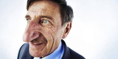 9. El turco Mehmet Ozyurek tiene el récord por tener la nariz más grande con una medida de 3,5 pulgadas. Crédito: aktuel.mynet.com