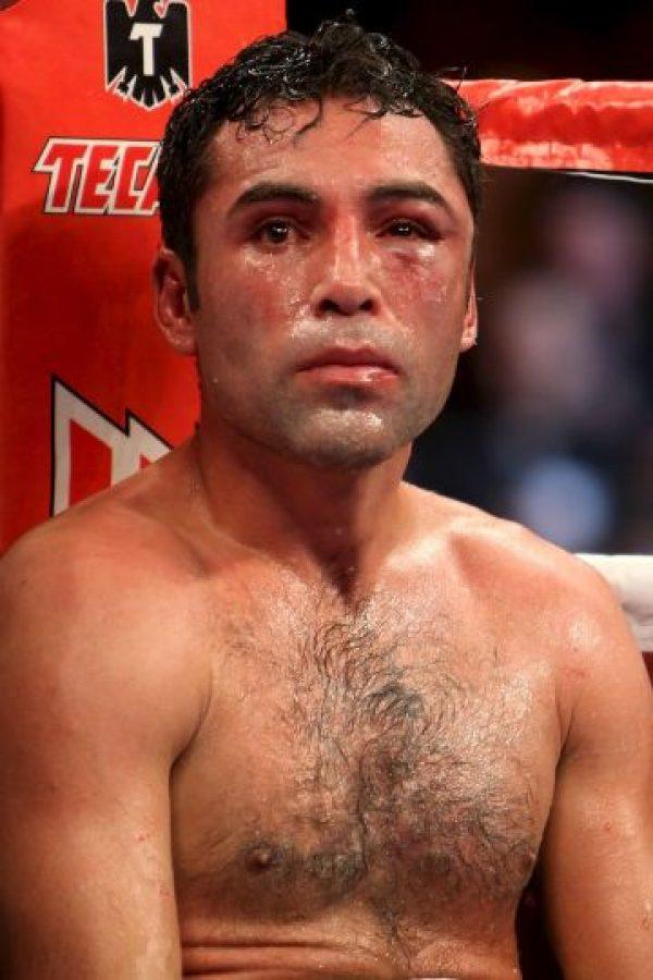 """Así quedó el llamado """"Golden Boy"""" después de su última pelea Foto:Getty"""