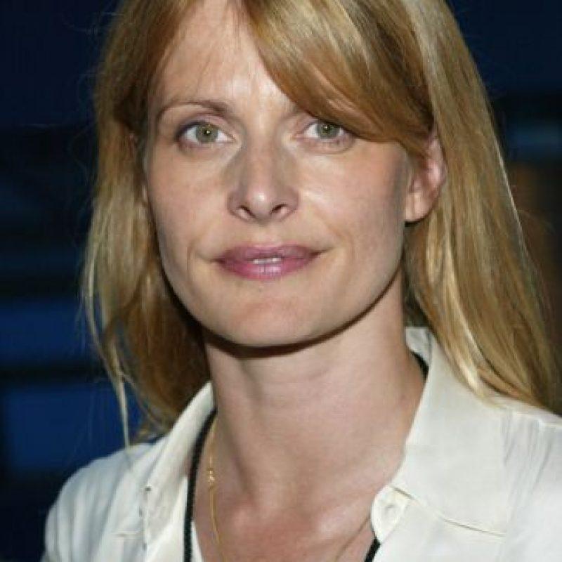 La modelo alemana Nastassja Kinski no tiene problemas al hablar publicamente sobre este padecimiento. Foto:Getty Images
