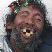Se estima que la enfermedad de las encías afecta a más de la mitad de todos los adultos en el Reino Unido. Foto:Tumblr.com/Tagged/sonrisa