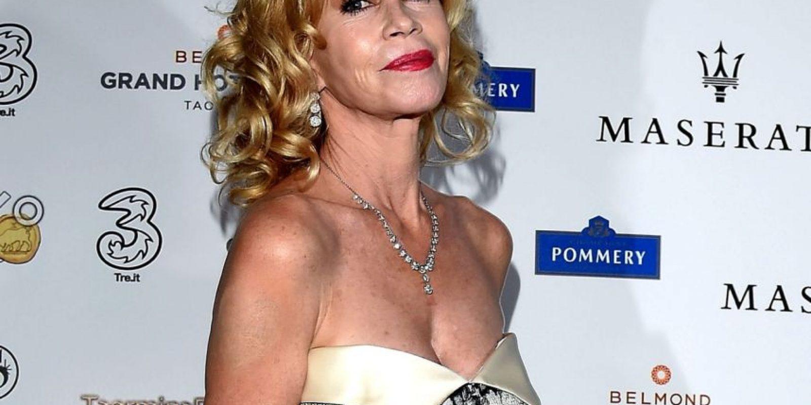 La atormentaron por su aspecto. Foto:Getty Images