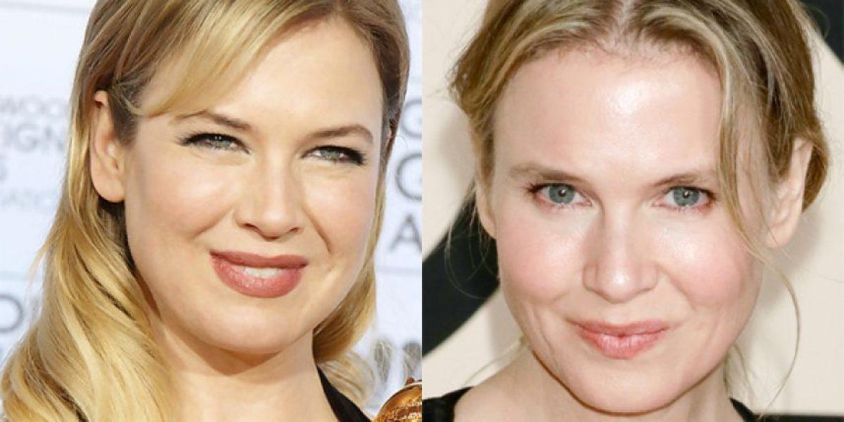 Galería: Estos famosos cambiaron dramáticamente con sus cirugías plásticas