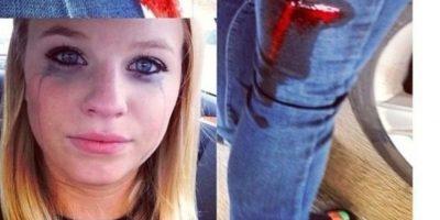 La apuñalaron y pone su foto en Instagram en vez de ir al hospital. Foto:Twitter