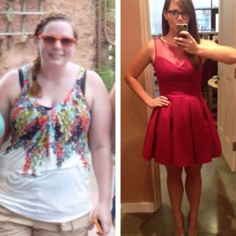 Un rasgo fisico popular entre la gente obesa es el estiramiento de la piel propiciado por la pérdida de elasticidad en la piel. Foto:Reddit