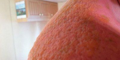 La piel puede quedar severamente dañada. Foto:Imgur