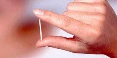 Es una varillita aproximadamente del tamaño de un cerillo y se implanta en el brazo. Dura tres años y tiene, en general, muy pocos efectos secundarios. Debe ser colocado por un médico. Foto:Wikipedia