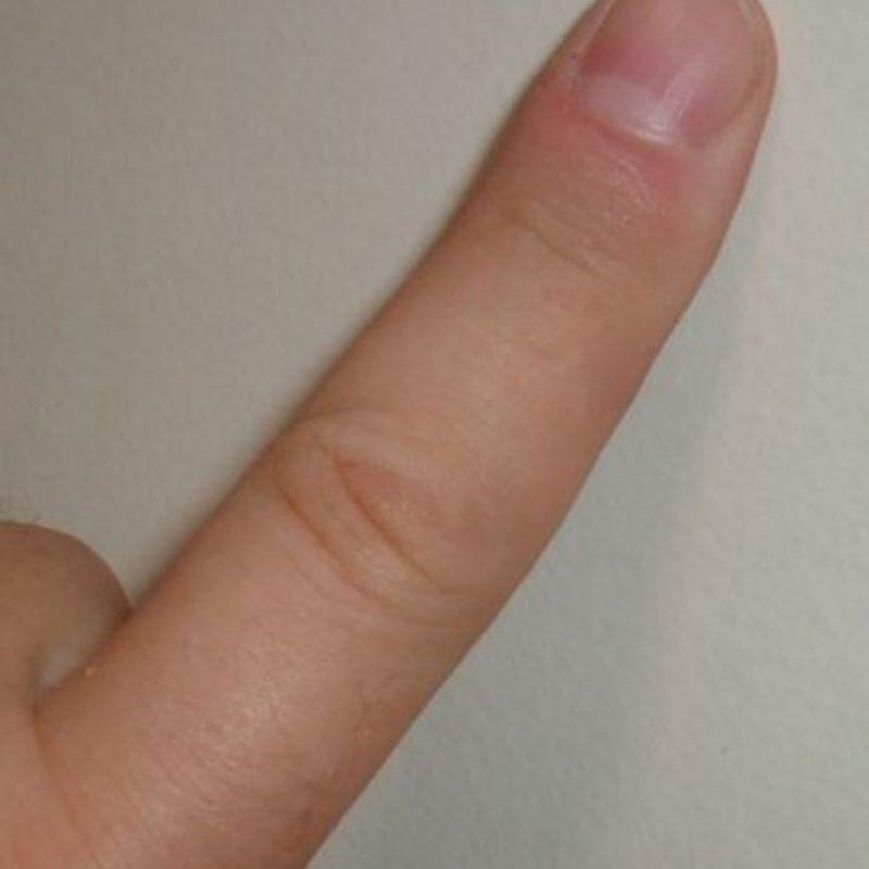 """""""La sorpresa"""" (The Shocker): Los dedos de una persona se insertan en los genitales y la parte anal de su compañero. Foto:Wikipedia"""