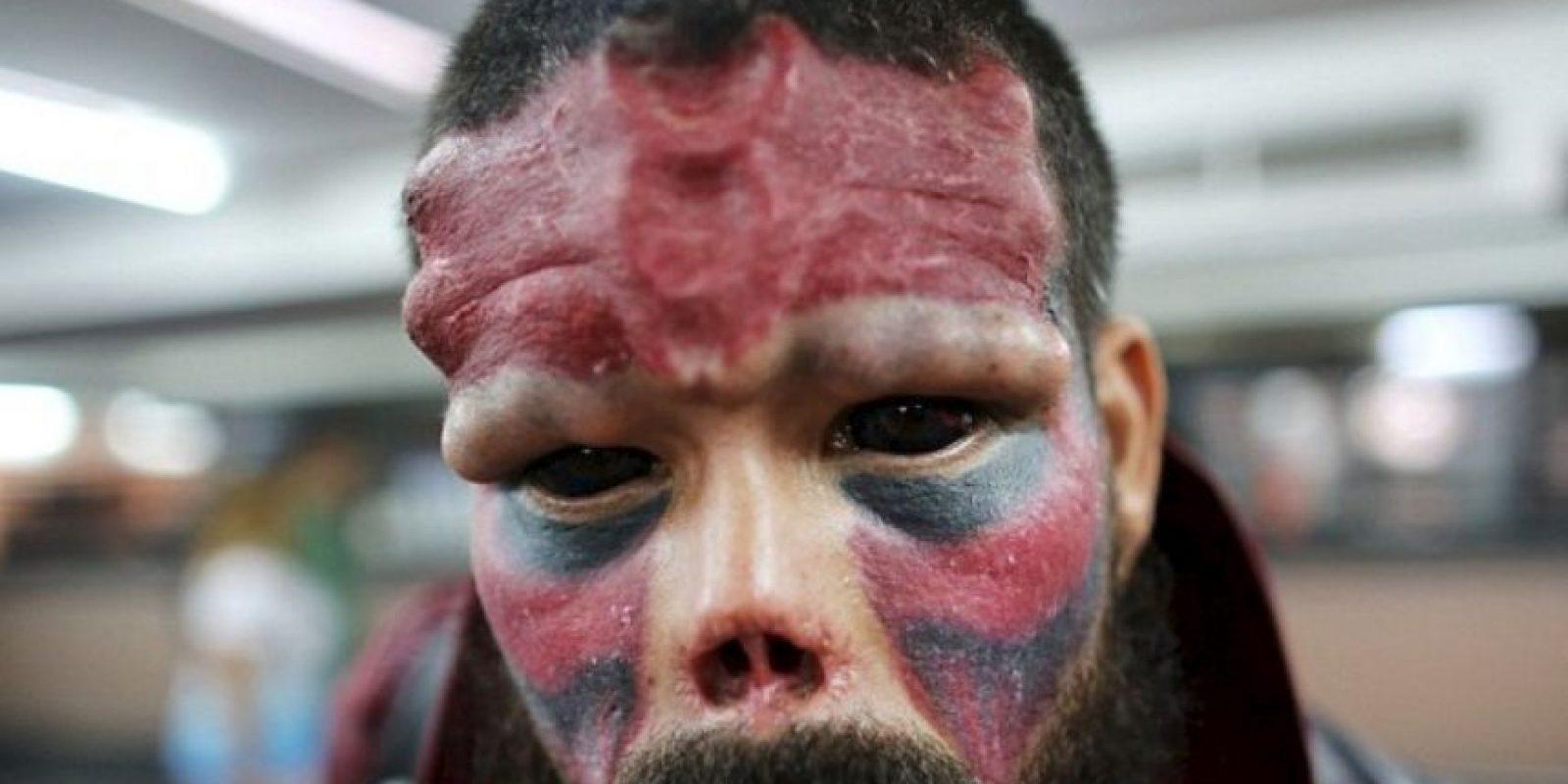 """Henry Damon, venezolano de 37 años se quitó la nariz para parecerse a """"Red Skull"""", enemigo del """"Capitán América"""". Foto:Getty Images"""
