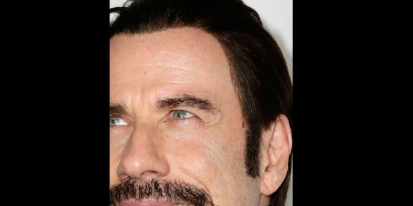 ¿Eso es una peluca? Foto:Getty Images