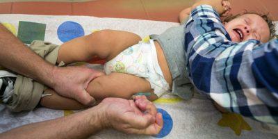 El sarampión se declaró eliminado de Estados Unidos en 2000. Foto:AP