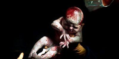 Nacido abril 12, 2013 a las 8:40 am 3kg 574 – 14 segundos de vida Foto:Christian Berthelot