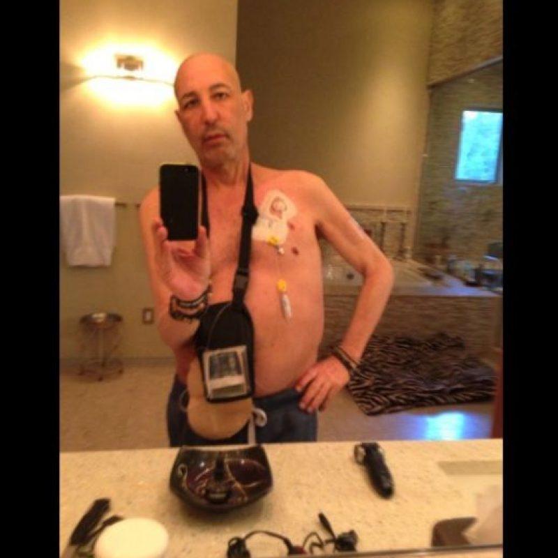 En este selfie se pueden apreciar los daños que generó el cáncer en su cuerpo. Foto:Twitter/simonsam