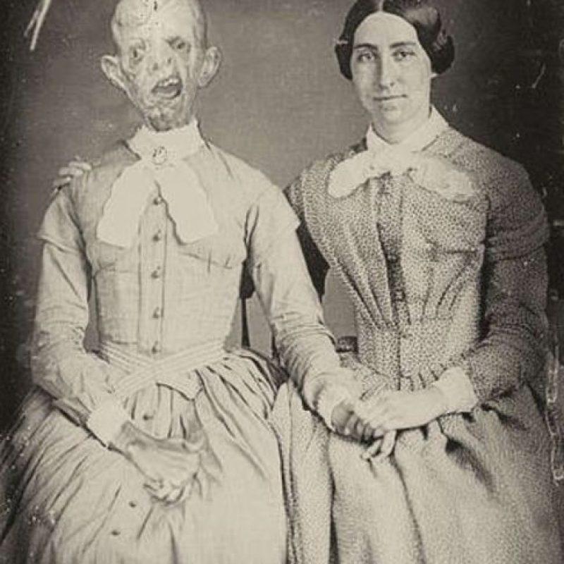 Esta es una foto post-mortem, no se sabe por qué la hicieron tiempo después de muerta la persona.
