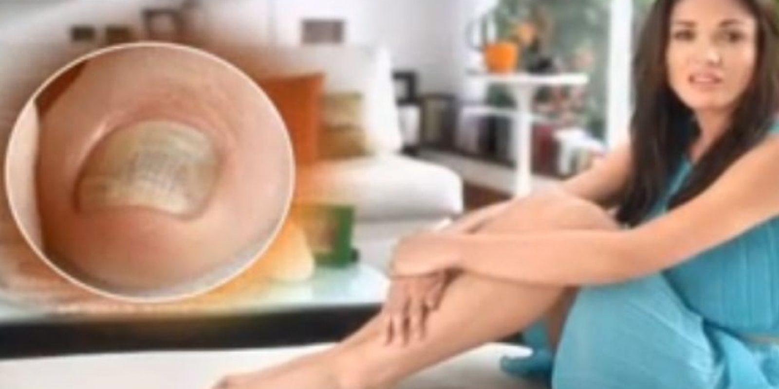 Nataly Umañan. Omnicomicosis. Foto:Captura de Youtube