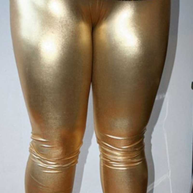 También puede producir úlceras, en caso de usar cosas muy apretadas Foto:Poorly Dressed