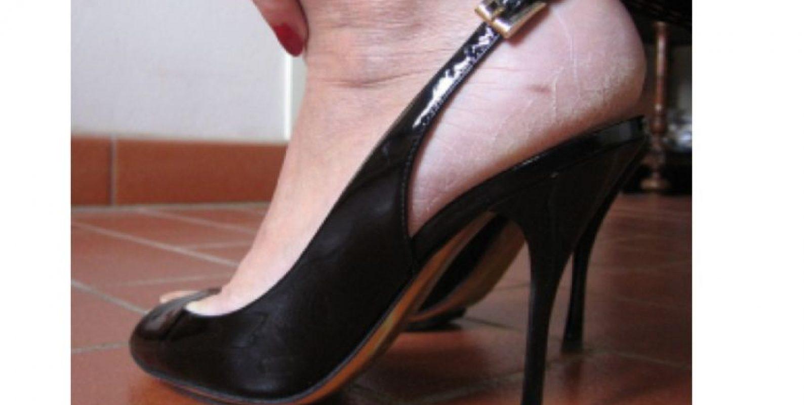 Cuando tus talones necesitan ser urgentemente humectados Foto:Tumblr.com/Tagged-zapatos-wtf