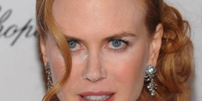 Lo mismo pasó con Nicole Kidman. A ella le quedó un gran pedazo al lado de la nariz. Foto:Getty Images
