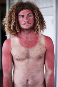 Según datos de la Organización Mundial de la Salud (OMS) señalan que cada año se triplica en el mundo el número de casos de cáncer de piel. Foto:Bunkerpop