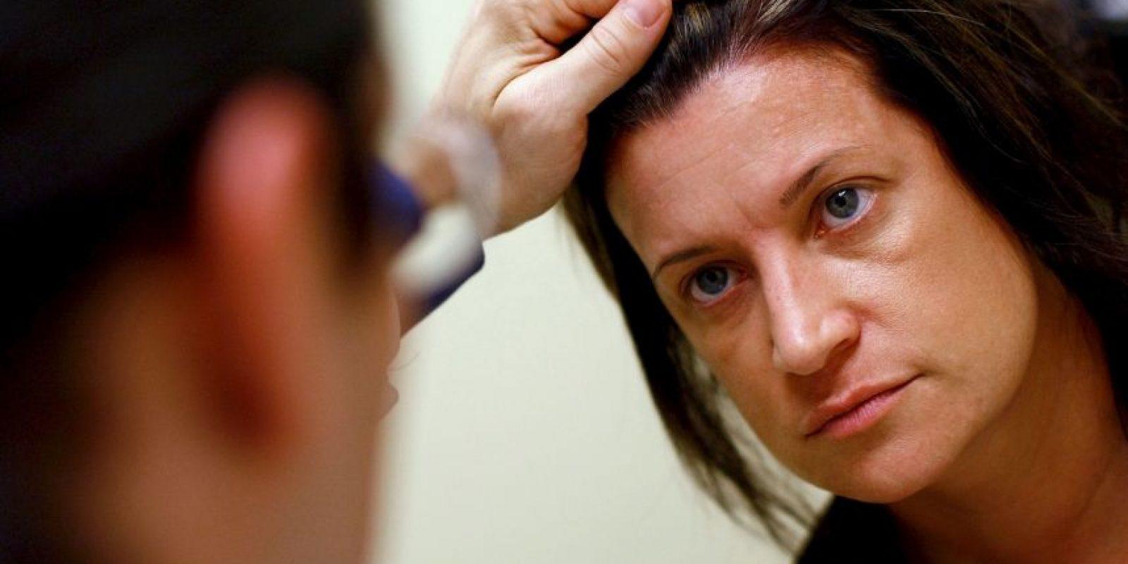 10. Nos protege de enfermedades de la piel. Foto:Getty Images