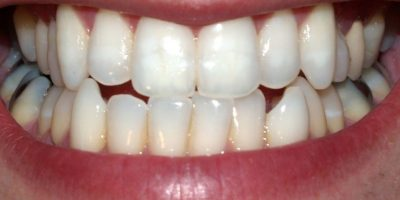 13. Cuida nuestros dientes Foto:Wikipedia