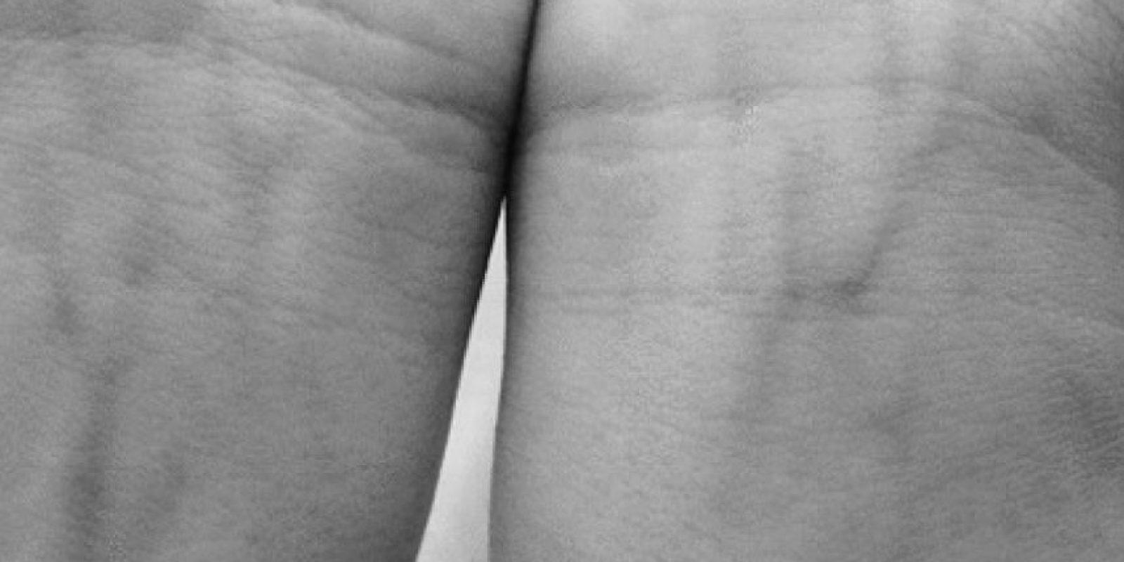 15. Aliado contra la creación de trombos en a sangre. Foto:Pinterest